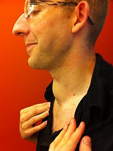 Jay's neck (showing the goiter)before his Thyroidectomy.