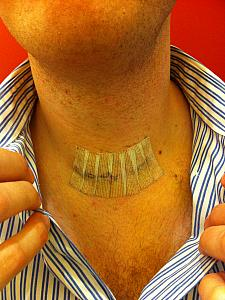 Jay's neck post surgery -- the stitches.
